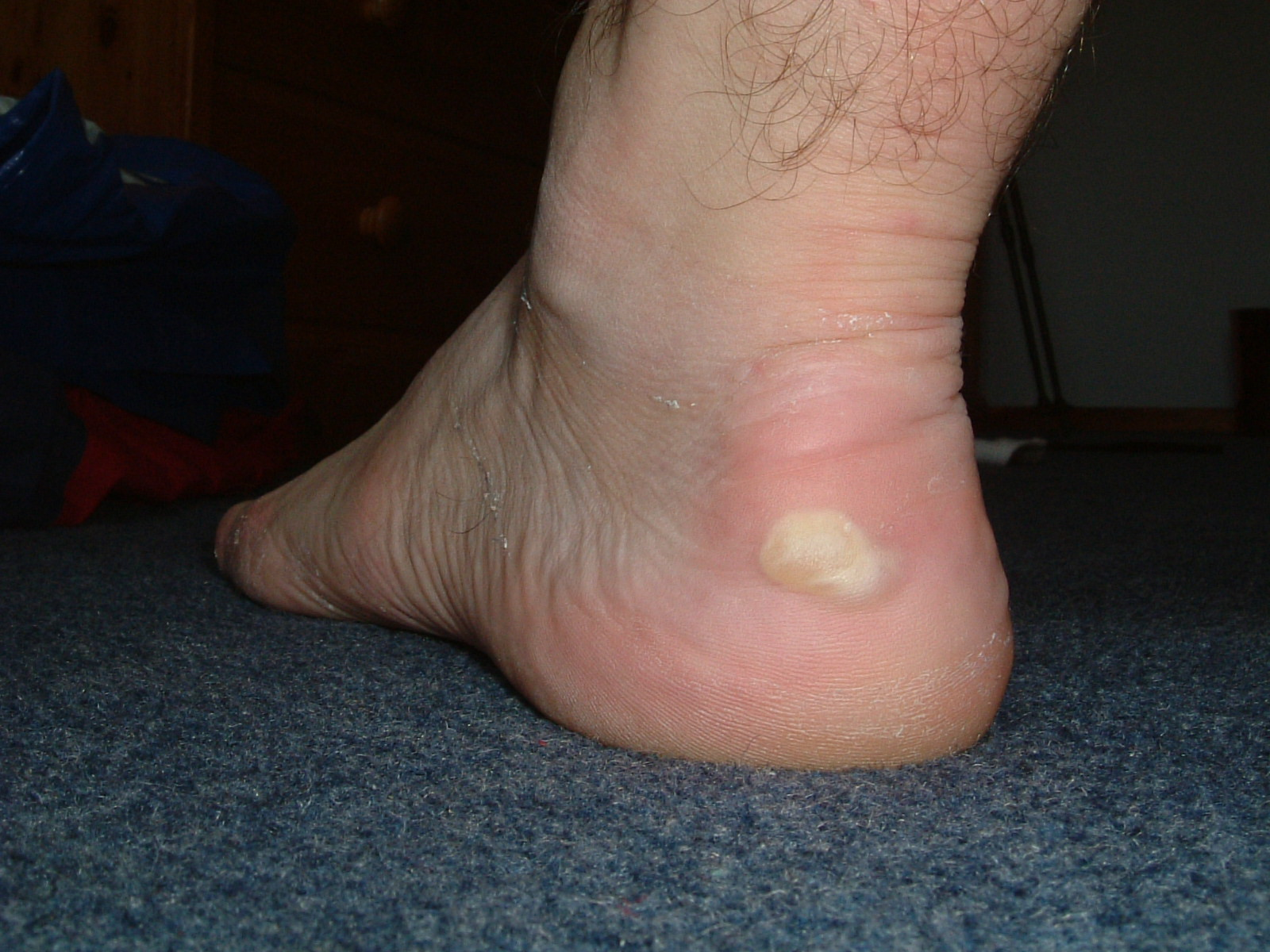 Blisters on Mark's left foot after the first day of the Cotswold Way