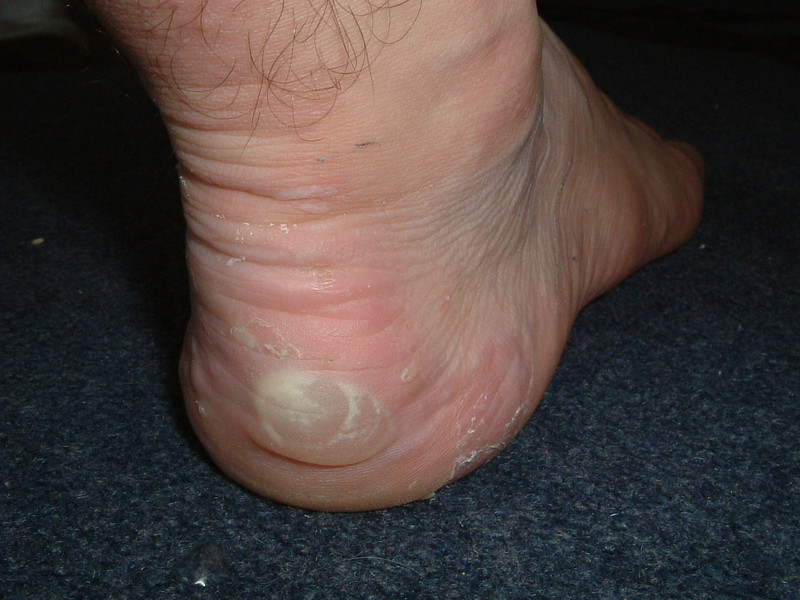 Blisters on Mark's right foot after the first day of the Cotswold Way
